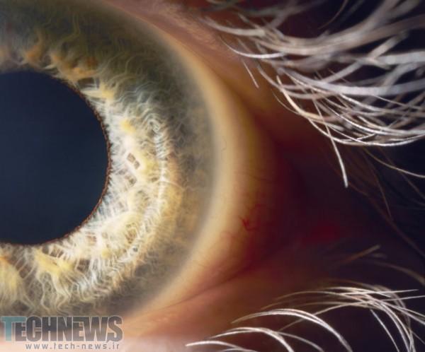 Photo of محققان آمریکایی یک گام به درمان نابینایی نزدیکتر شدند