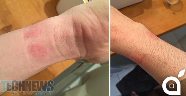 Some-Apple-Watch-wearers-are-experiencing-allergic-reactions-from-wearing-the-device-nbsp