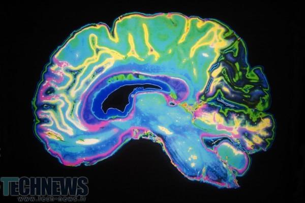 Photo of دانشمندان سلولهای عصبی را که به پردازش احساسات انسان کمک میکنند را شناسایی کردند
