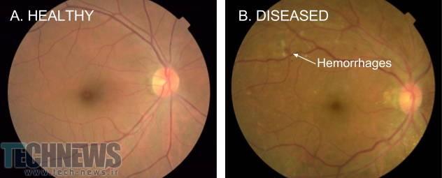 Photo of شناسایی بیماری چشمی مرتبط با دیابت توسط هوش مصنوعی گوگل