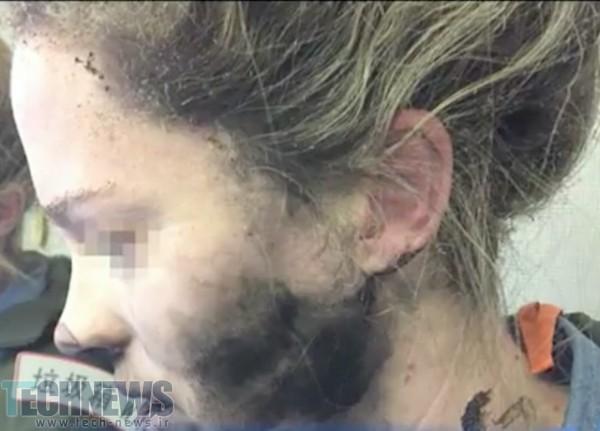 Photo of هدفونهای یک زن در طول پرواز، روی سرش منفجر شد
