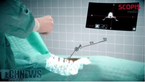 Photo of هدست هولولنز مایکروسافت به کمک جراحی ستون فقرات میآید