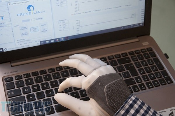 پروتز دست مصنوعی با ایجاد حس لازمه