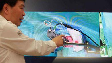 Photo of عمل جراحی از راه دور مغز ، بر پایه شبکه 5G تاریخساز شد