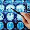 ارائه روشی جدید از سوی پژوهشگران عربستانی جهت تشخیص زودهنگام مننژیوم