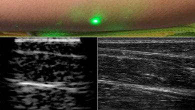 Photo of تصویربرداری فراصوتی لیزری در آینده نزدیک جایگزین سونوگرافی خواهد شد