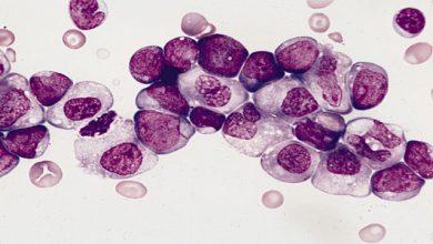 Photo of ابداع روش تشخیصی نوین سرطان خون توسط محققان آلمانی