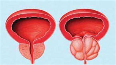 Photo of با کمک امواج فراصوت سرطان پروستات درمان می شود
