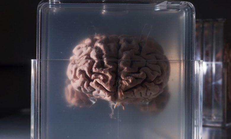 Photo of روش های درمانی جدید برای درمان سرطان مغز