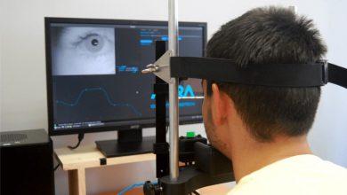 Photo of استفاده از هوش مصنوعی در تشخیص بیماری های عصبی