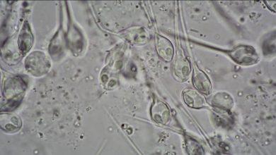 Photo of کشف اولین جاندار چند سلولی که بدون اکسیژن زندگی میکند