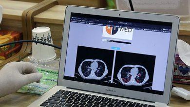 Photo of تشخیص کووید 19 با سامانه مبتنی بر هوش مصنوعی ساخت محققان ایرانی