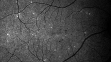 Photo of تشخیص سریع بیماری آب سیاه چشم با هوش مصنوعی