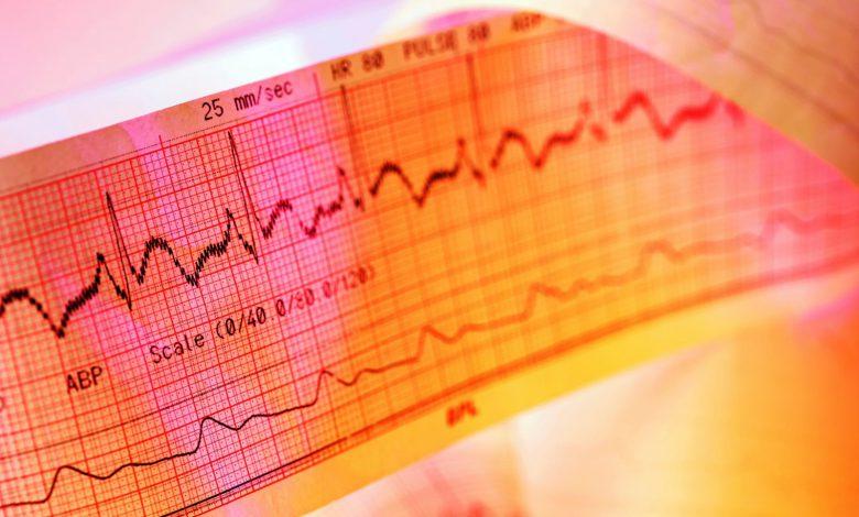 ساخت اپلیکیشنی که میتواند نارسایی قلبی را تشخیص دهند