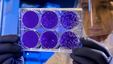 Photo of دانشمندان با ترساندن باکتری آن را مجبور به تولید آنتیبیوتیک بیشتر کردند