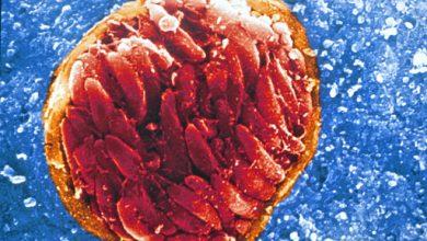 Photo of ۲ میلیارد نفر در جهان انگل مغزی دارند