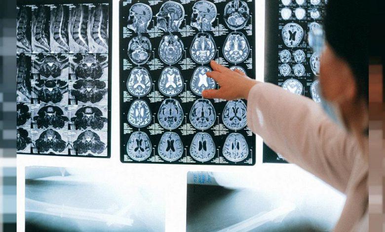 دقت بالای روش مبتنی بر هوش مصنوعی در تشخیص زودهنگام آلزایمر