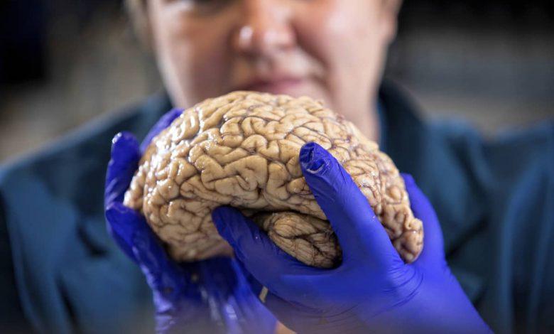 دانشمندان عامل اصلی آلزایمر را نشت نوعی پروتئین در مغز میدانند