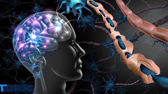 تلاش پژوهشگران برای درمان بیماری ام اس با کمک یک مولکول