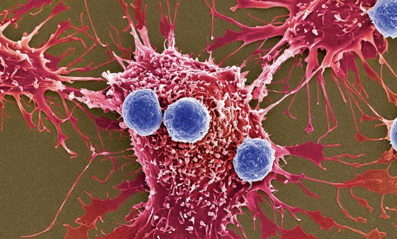 باکتری هایی که میتوانند ازطریق فراصوت منفجر شده و سلولهای سرطانی را از بین ببرند